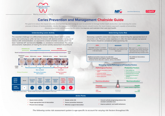 Caries prevention and management_chairside guide